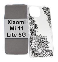 billigamobilskydd.se TPU-Designkotelo Xiaomi Mi 11 Lite / Mi 11 Lite 5G