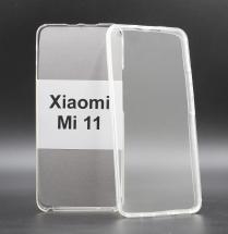 billigamobilskydd.se Front & Back Kotelo Xiaomi Mi 11